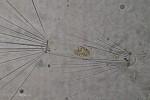 Corethron diatom with chloroplasts inside
